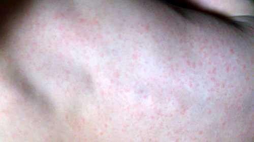 風疹写真.jpg